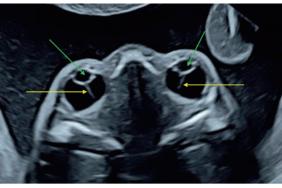Dépistage des pathologies oculaires du fœtus : le temps du dépistage 2.0