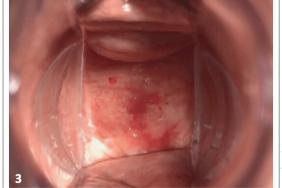 Sécheresse vaginale : estrogène, hydratant, lubrifiant ou laser