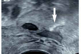 Un acte d'exploration de l'infertilité en échographie est né en 2021 ! Le JKQJ350 – l'épreuve de perméabilité des trompes utérines au cours d'une hystérosalpingosonographie de contraste