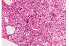 Cancer de l'endomètre – Que retenir des nouvelles recommandations ?