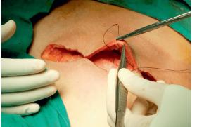 Chirurgie des cancers du sein – Quand les choix des patientes ne sont pas conformes aux attentes des médecins