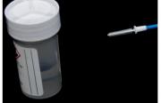 Tests HPV : quels outils en pratique ?