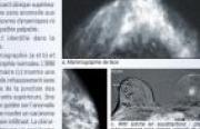 Illustration : IRM (cliché en soustraction) : plage de rehaussement sans masse arrondi de 15 mm de diamètre.